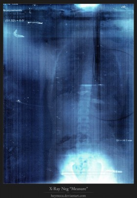 x-rays, texture, background, download photo, x-ray texture background