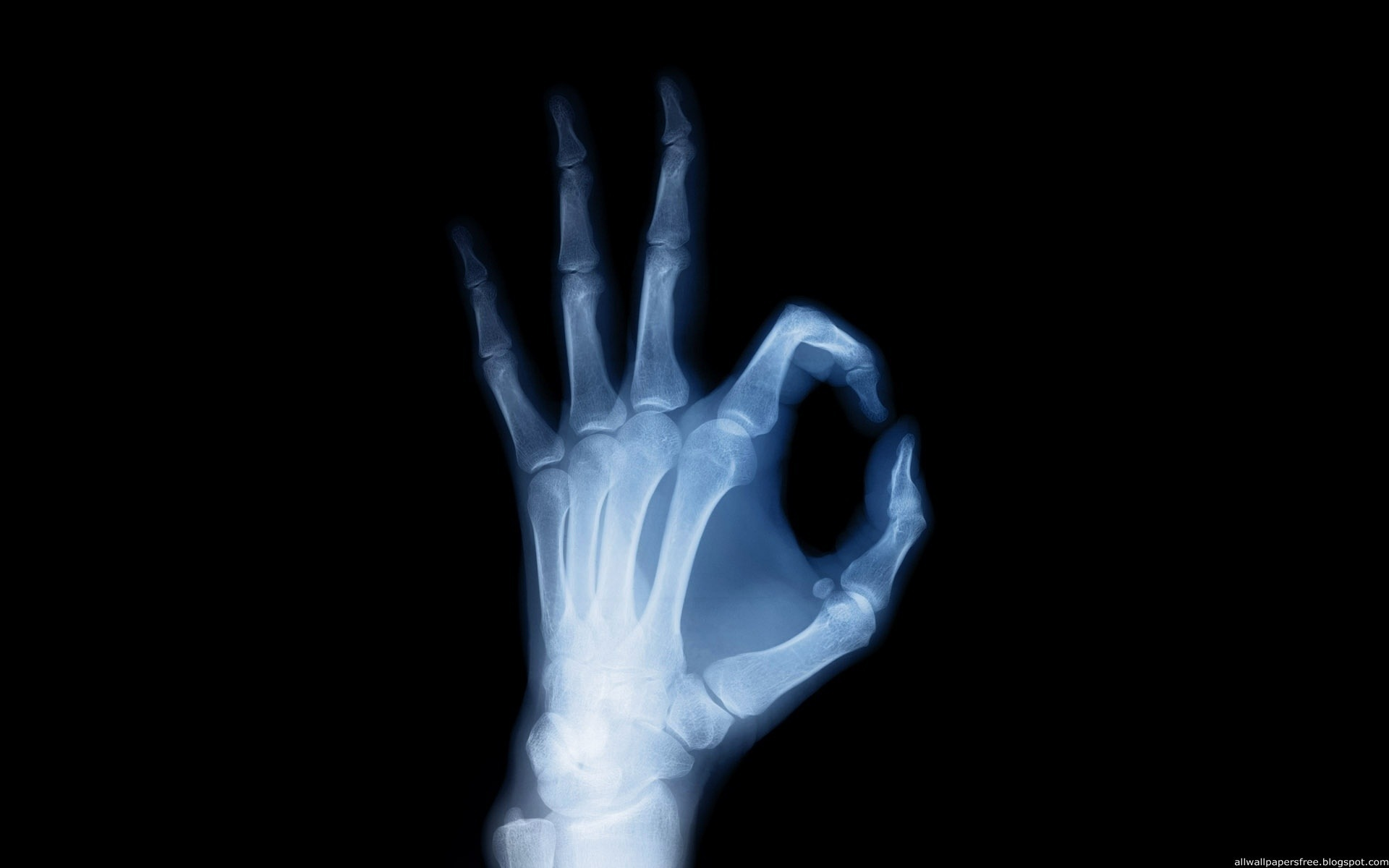 x-rays, texture, background, download photo, arm x-ray texture background