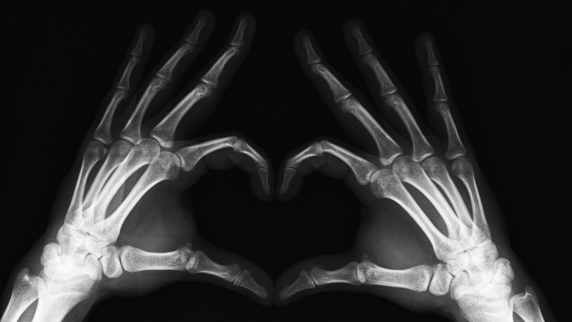 x-rays, texture, background, download photo, arms x-ray texture background