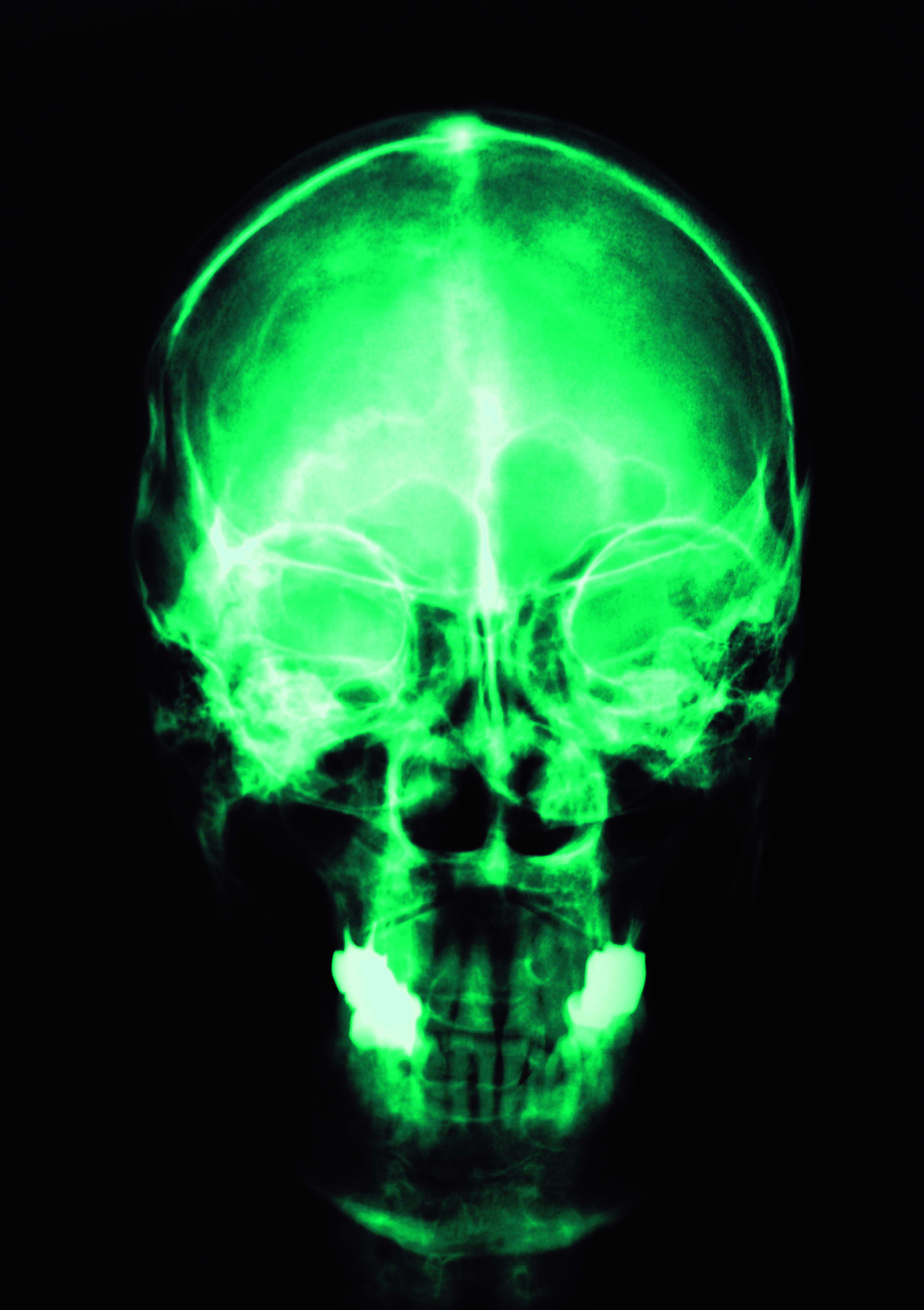 skull x-rays, texture, background, download photo, head skull x-ray texture background